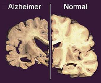 à direita o cérebro de uma pessoa com Mal de Alzheimer e à esquerda um normal